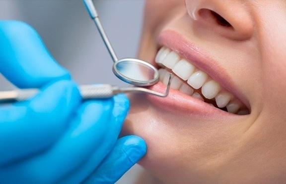 В Волновахской стоматологии Smile появилась уникальная услуга по отбеливанию зубов